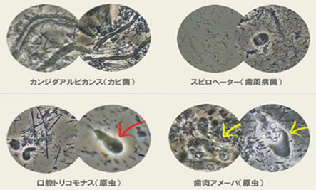 口腔内顕微鏡
